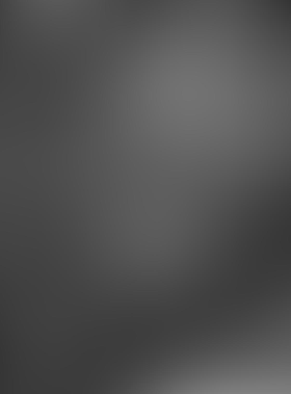 iPhone Photo Shadows 6