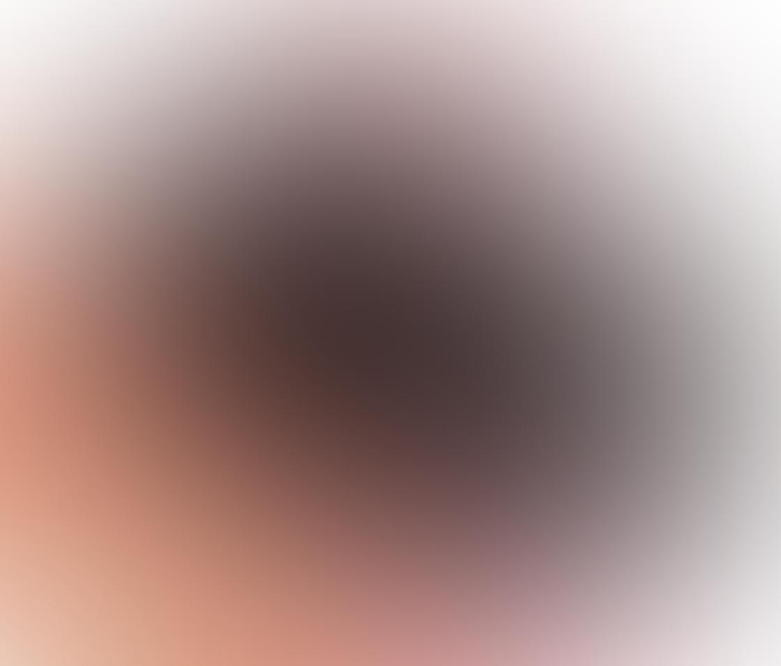 Kodak Pixpro iPhone Zoom Lens 17