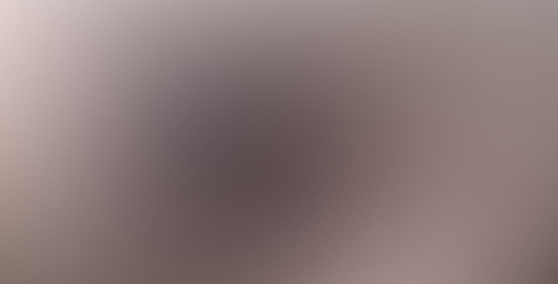 Ztylus Z-Prime iPhone Lens 6